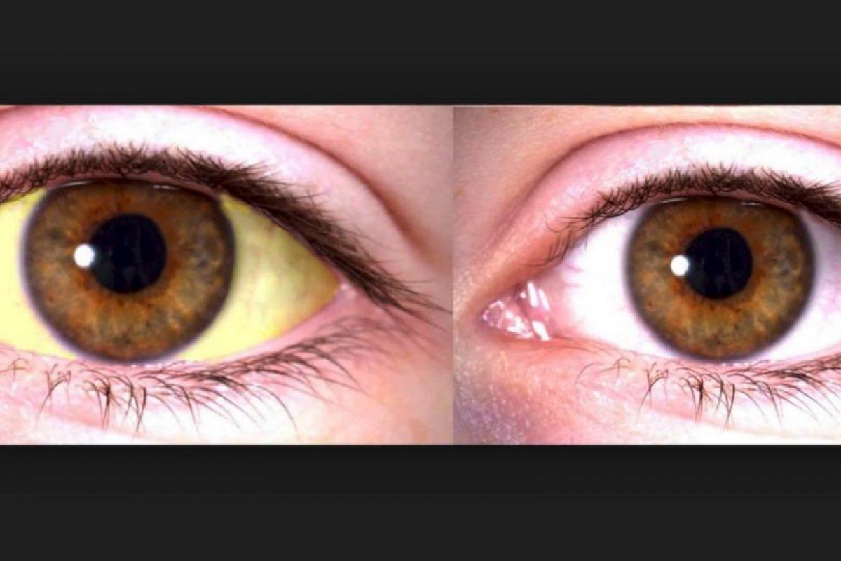 3. Ojos amarillos. El síntoma puede ser un signo de enfermedad hepática potencialmente mortal, que no debe ser ignorado. Foto:Pixabay. Imagen Por: