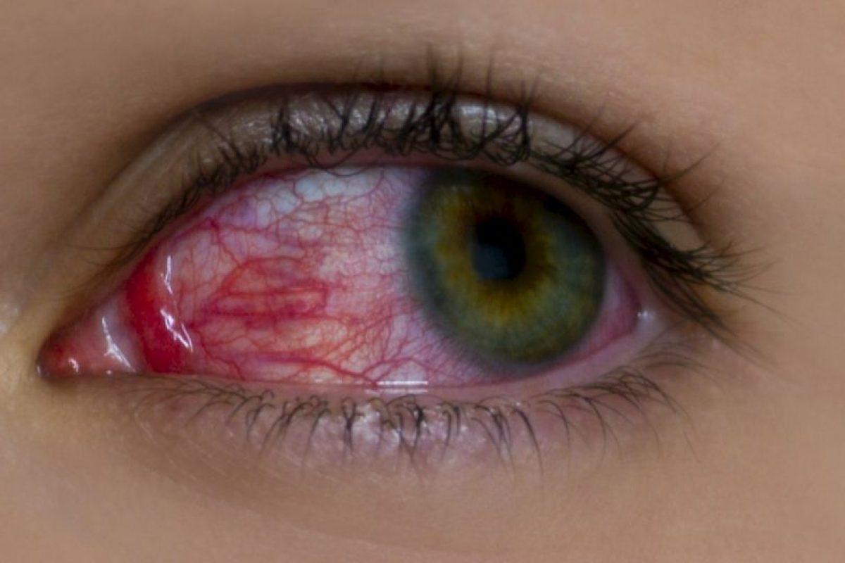 5. Derrames en los ojos. Foto:Pixabay. Imagen Por: