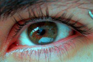 Es aconsejable acudir a un médico, ya que puede resultar una condición grave como la conjuntivitis, y glaucoma. Aunque también hay otras explicaciones, menos graves a menudo provocadas por su vida diaria. Foto:Pixabay. Imagen Por: