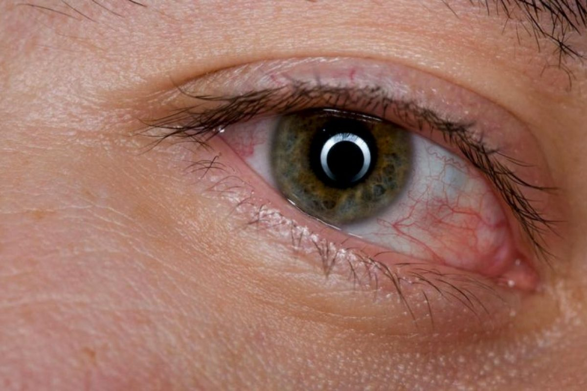4. Bolsas debajo de los ojos. Foto:Pixabay. Imagen Por:
