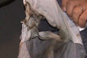 El usuario estadounidense dijo que repentinamente se prendió fuego en su pantalón. Foto:vía ABC News. Imagen Por: