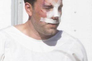 Y la nariz vendada, el actor fue fotografíado por los paparazzi en Los Ángeles, California. Foto:Grosby Group. Imagen Por: