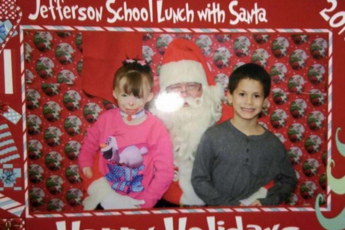 Una pequeña que sobrevivió a un incendio decidió que no quería juguetes para esta Navidad. Foto:Vía facebook.com/Schenectadyssupersurvivor. Imagen Por: