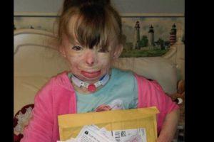 Ahora ella vive en Nueva York con su tía Liz Dolder, quien compro un árbol de Navidad donde planean colgar las cartas. Foto:Vía facebook.com/Schenectadyssupersurvivor. Imagen Por: