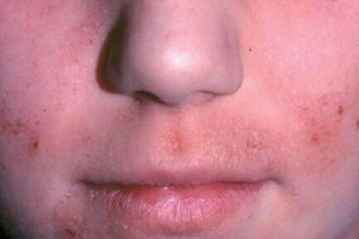 """4. Otra obsecuencia de usar maquillaje viejo es que incluso, podría manchar la piel, compartió la """"Revista Buena Salud"""" de España. Foto:Pinterest. Imagen Por:"""