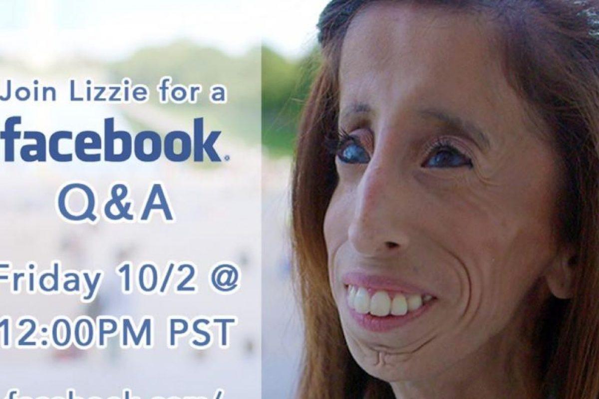También tiene síndrome de Marfan, pero no se dio por vencida. Foto:vía Facebook/Lizzie Velásquez. Imagen Por: