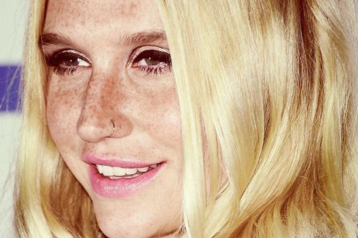 Así lucía el rostro de Kesha en septiembre de 2015 Foto:Getty Images. Imagen Por: