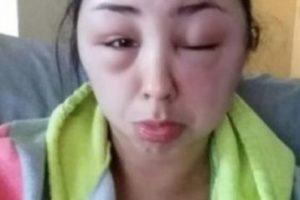Resulta que luego de realizarse el cambio de color, sufrió una fuerte alergia y estas fueron las consecuencias. Foto:Reddit. Imagen Por: