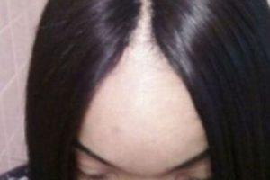 Tal como este caso, quien mostró la pérdida de su cabello. Foto:NoWayGirl. Imagen Por: