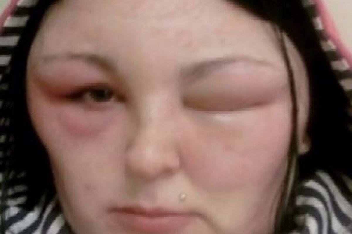 Afortunadamente, la mujer de Reino Unido superó dicho problema. Foto:Vía Youtube. Imagen Por:
