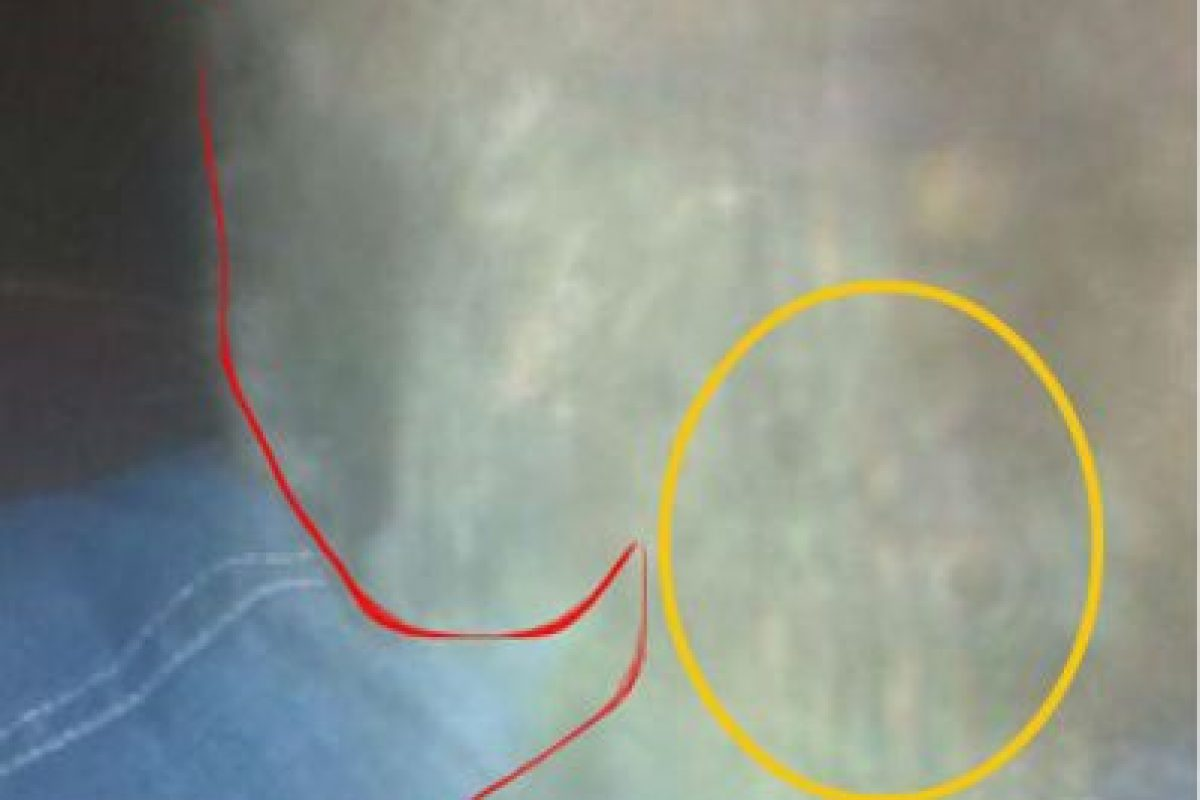 Aquí les señalamos la silueta del gato en rojo y en amarillo los que parecen ser unos ojos, según el usuario de Imgur OGDOS. Foto:Vía Imgur. Imagen Por: