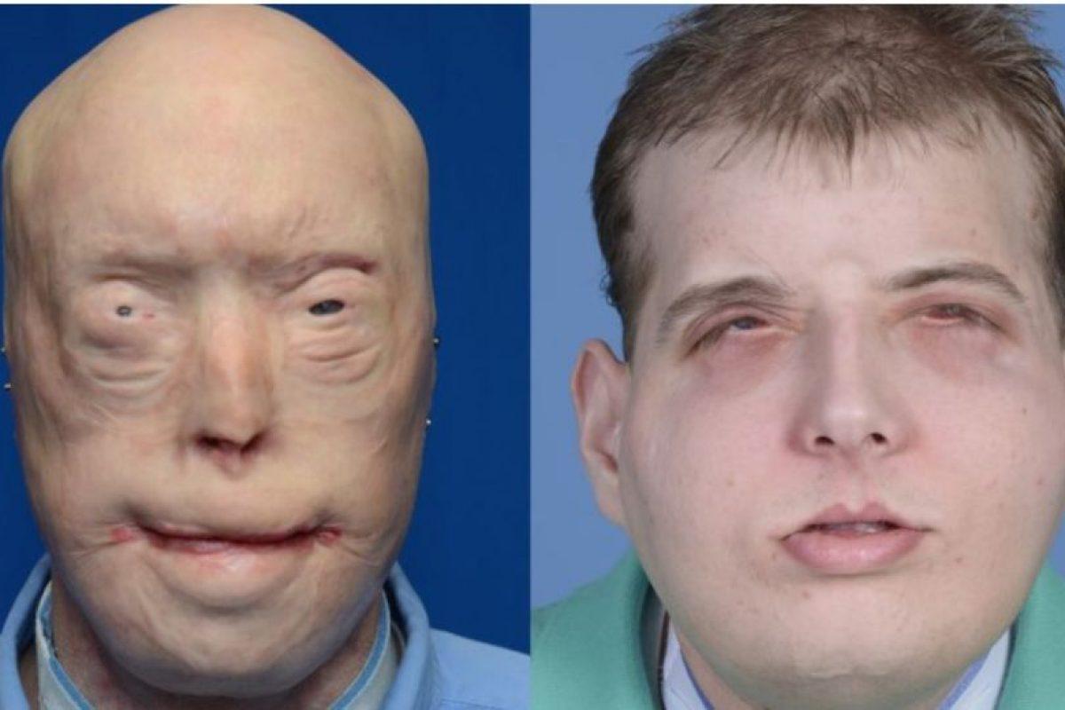 La cirugía de reconstrucción de cara del bombero Patrick Hardison, de 41 años, duró 26 horas y estuvo a cargo del doctor Eduardo Rodríguez. Foto:AFP. Imagen Por: