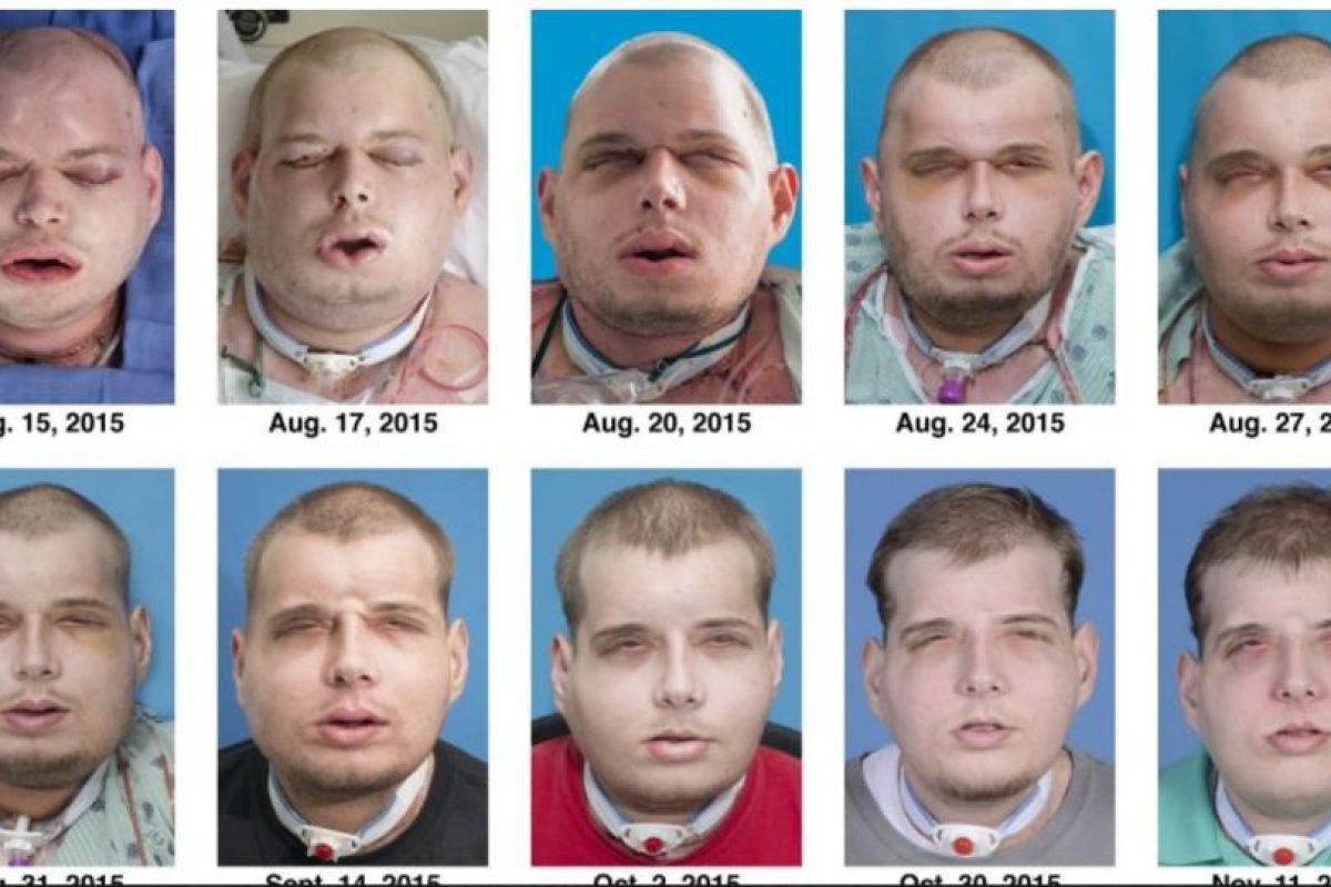 Cirujanos de Estados Unidos realizaron el transplante de rostro más extenso del mundo, en el que se incluyeron cuero cabelludo, orejas y párpados. Foto:AFP. Imagen Por: