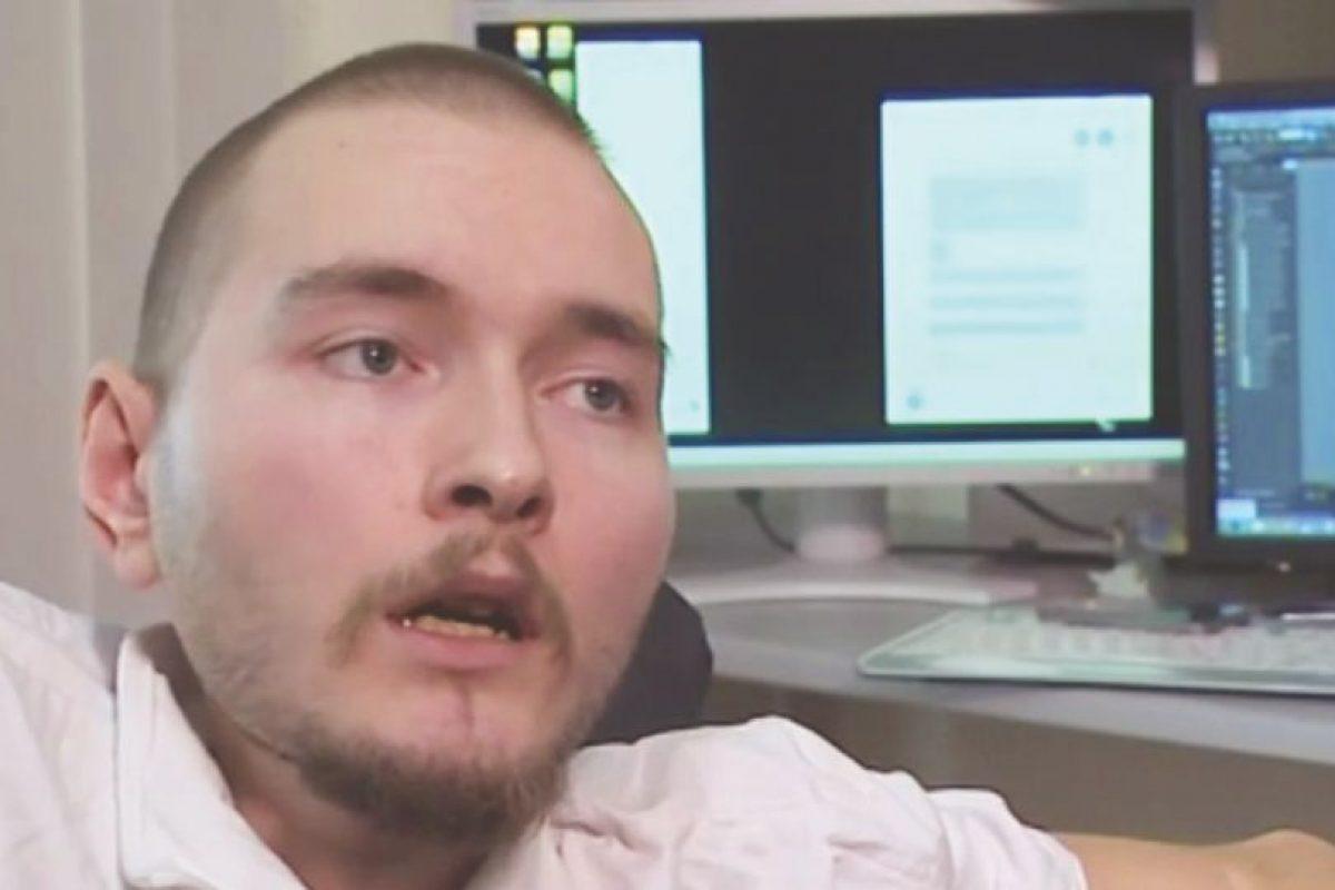 Valery Spiridonov se ofreció para ser preseleccionado para el primer trasplante de cabeza del mundo. Foto:Twitter. Imagen Por: