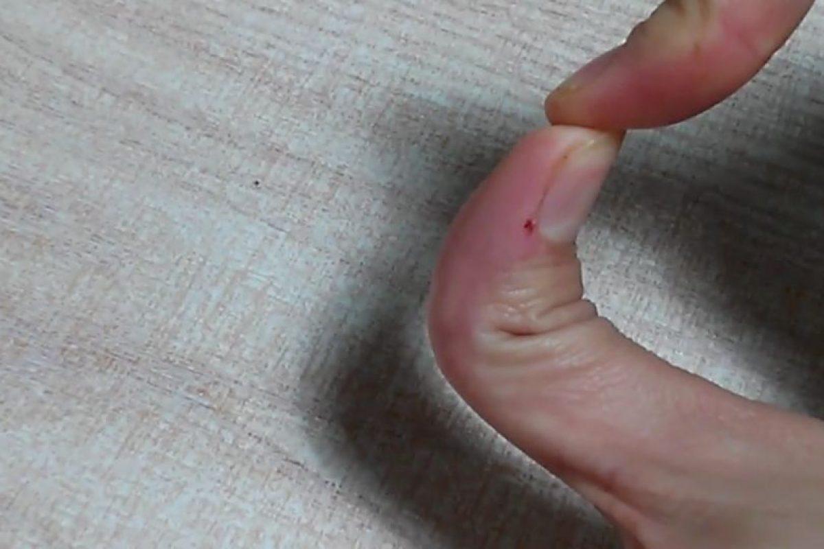 Edit: component Doblar el dedo pulgar hacia atrás. Foto:Vía Youtube. Imagen Por: