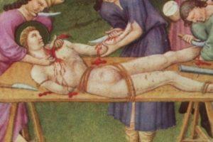 Generalmente, la víctima no llegaba a vivir luego del shock que le producían las heridas. Foto:vía Wikipedia. Imagen Por: