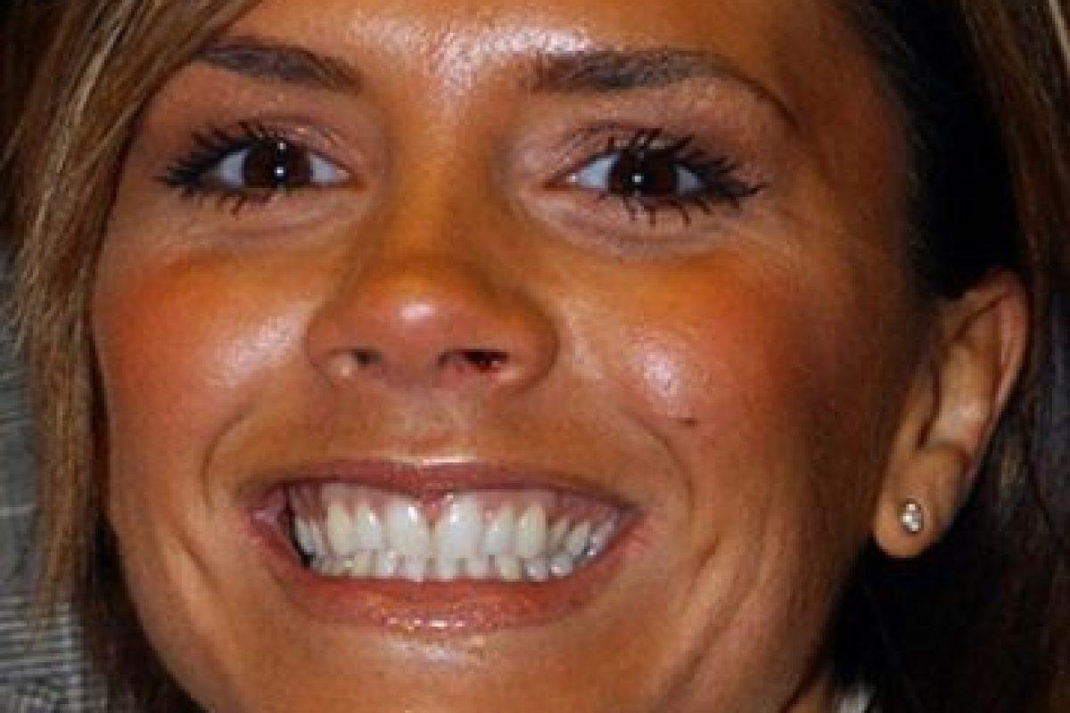 Acá, en 2007, cuando David estaba en Los Ángeles. Adoptó toda la estética de nuevo rico y se arregló los dientes. Foto:vía Getty Images. Imagen Por: