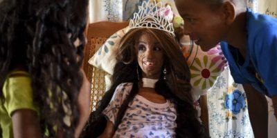 Colombia: niña con progeria cumplió 15 años con aspecto de 90