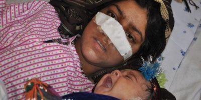 Un afgano le corta la nariz a su esposa y se une a los talibanes para huir
