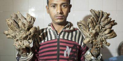 Un hombre se está convirtiendo en  árbol en Bangladesh