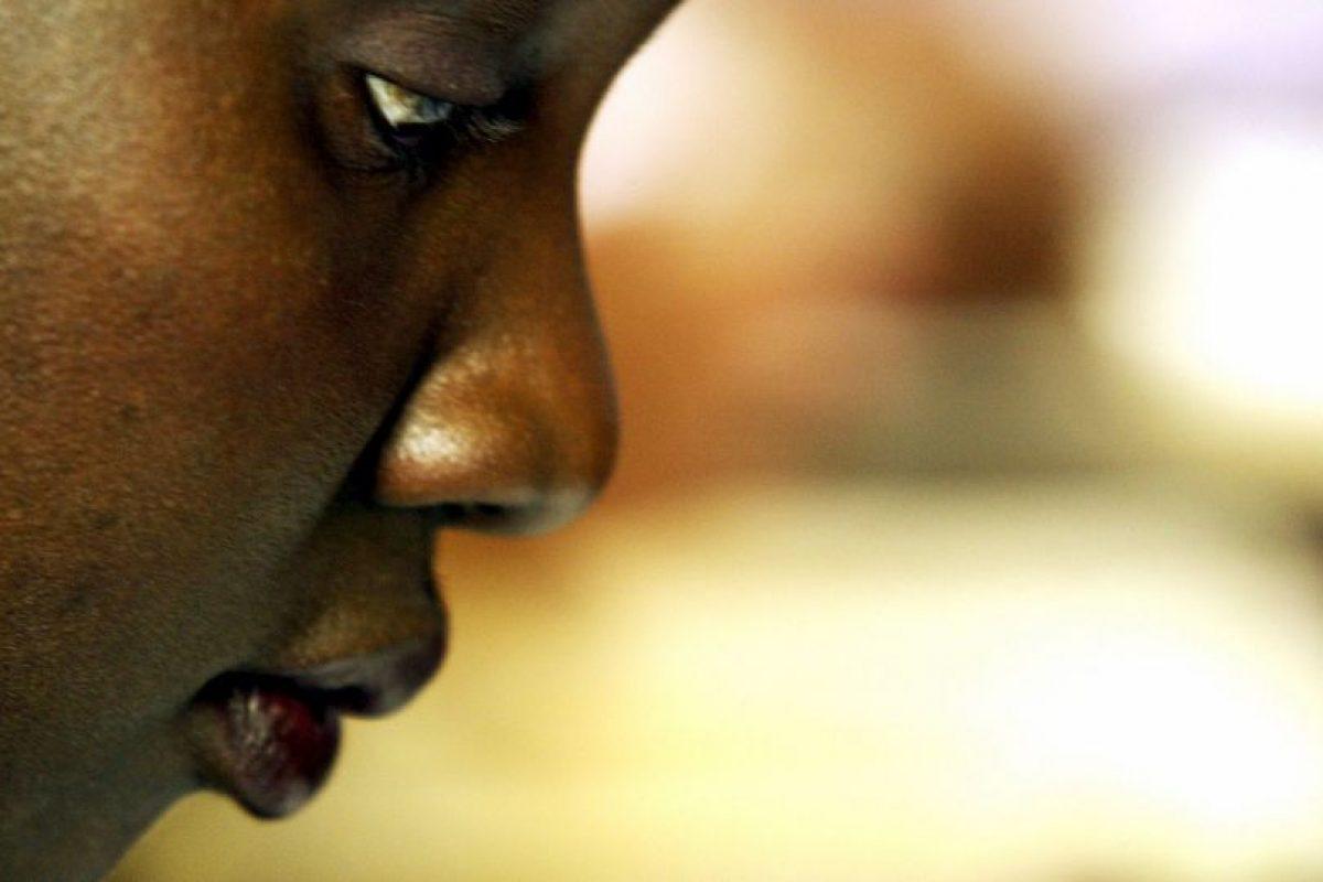 2. Quistes Foto:Getty Images. Imagen Por: