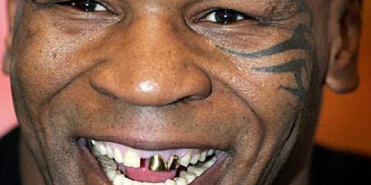 Fotos: 14 famosos que tienen dientes
