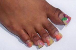Las uñas cuadradas no permiten caminar. Foto:vía NowayGirl. Imagen Por: