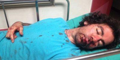 Jóvenes sufren brutal golpiza a la salida de discoteca en Concepción