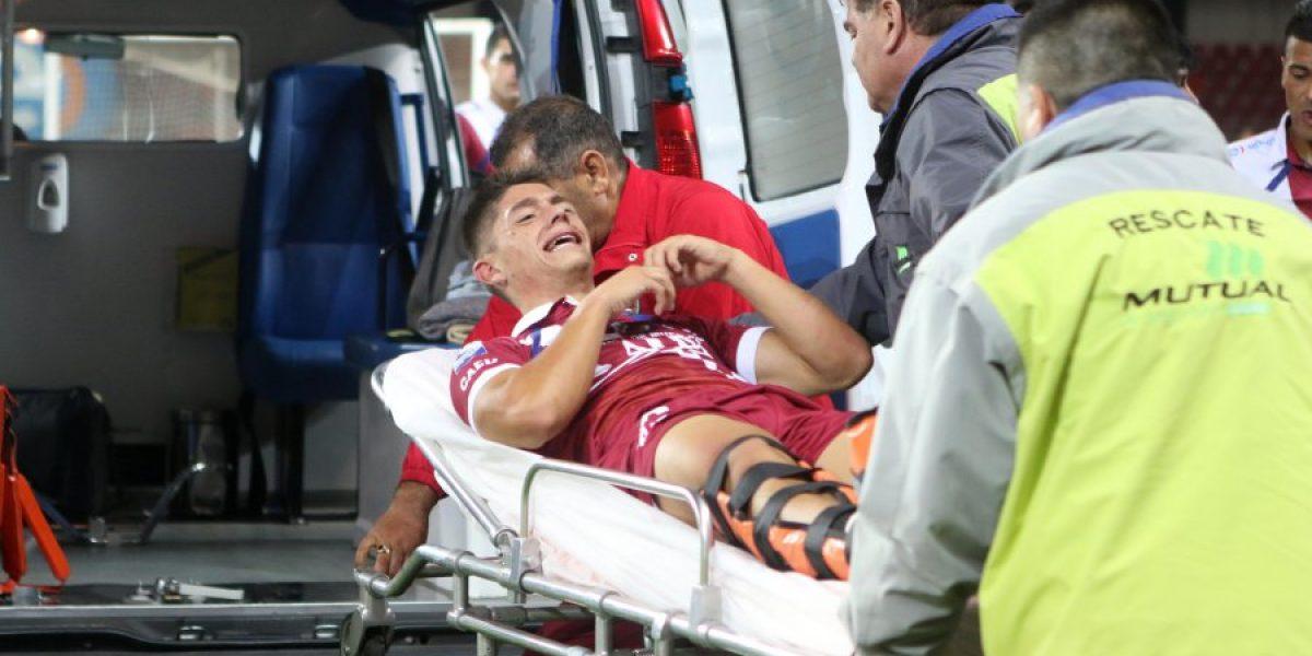 Jugador de La Serena sufrió fractura de tibia y peroné: