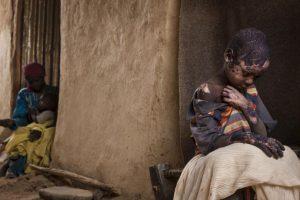 Adriane Ohanesian. Muestra a un niño con extremas quemaduras después de que cayó una bomba en Sudán. Foto:worldpressphoto.org. Imagen Por:
