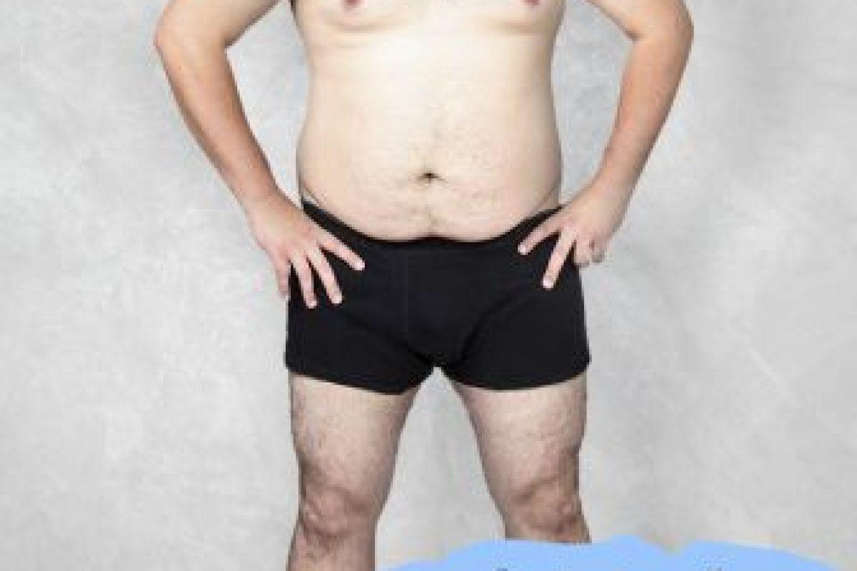 Así se ve el cuerpo original. Foto:Vía onlinedoctorsuperdrug.com. Imagen Por: