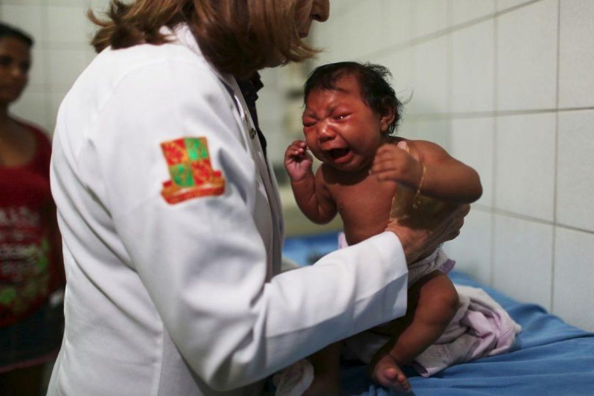 4 cosas que deben hacer si viajan a un país infectado de Zika Foto:Getty Images. Imagen Por: