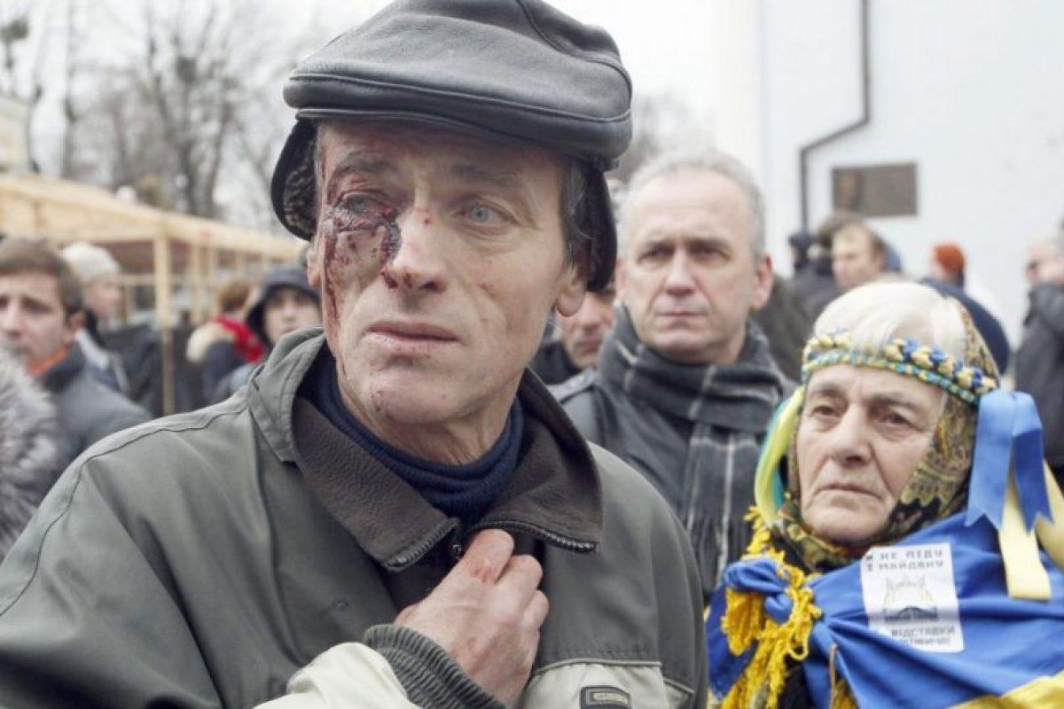 """Un ucraniano herido durante la represión de los """"berkut"""", en febrero de 2014. Foto:Efe. Imagen Por:"""