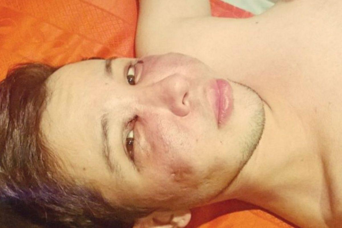 Intentó quitarse la vida por la depresión que le causó su apariencia Foto:Facebook Jersson Trujillo. Imagen Por: