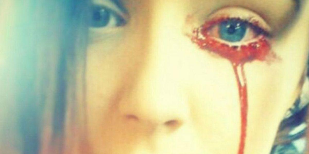 No hay explicación: dramático caso de joven inglesa que llora sangre