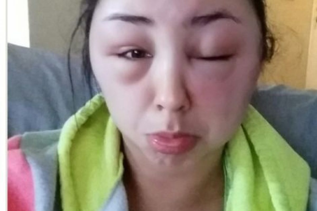 Todo por una reacción alérgica. Foto:vía Imgur. Imagen Por: