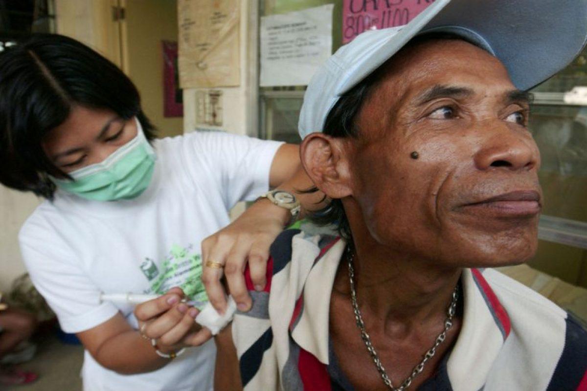 La antigüedad de esta enfermedad es de entre 15.000 y 20.000 años. Foto:Getty Images. Imagen Por: