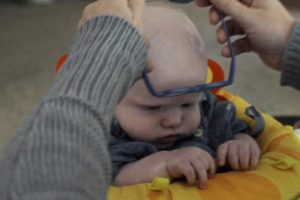 Albinismo Foto:Vía Youtube. Imagen Por: