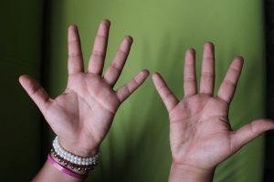 2. Sin embargo, se debe evitar realizar presión y masaje en heridas de menos de seis meses. Foto:Foto: PublimetroMX/Nicolás Corte. Imagen Por: