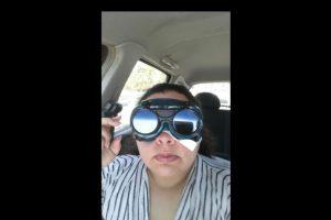 Después de que su cornea se rompiera, tuvo una biopsia. Foto:Imgur/minimonster1437. Imagen Por: