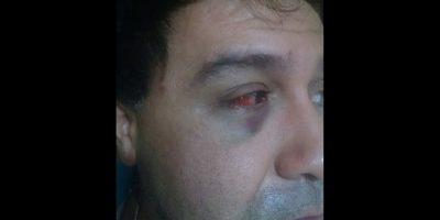 Denuncian violento ataque homofóbico contra pareja en San Joaquín