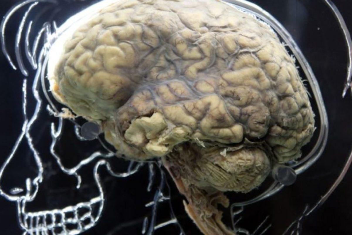 Cuando el problema de memoria llegue a afectar nuestras actividades diarias, es necesario acudir con un especialista. Foto:Getty Images. Imagen Por: