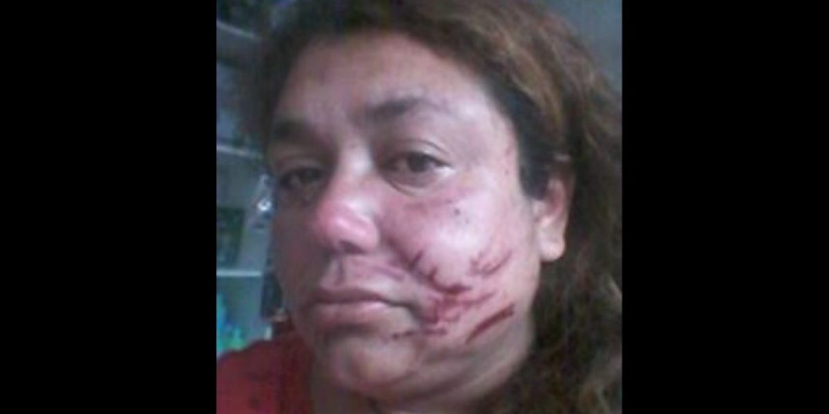 Movilh presentará querella contra agresores de mujer que defendió a su hijo de insultos homofóbicos