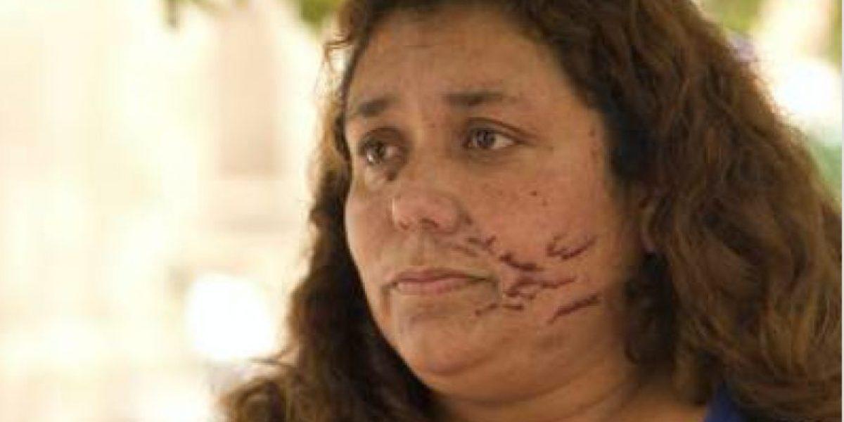Mujer presenta querella por fuertes agresiones homofóbicas contra ella y su hijo de 7 años