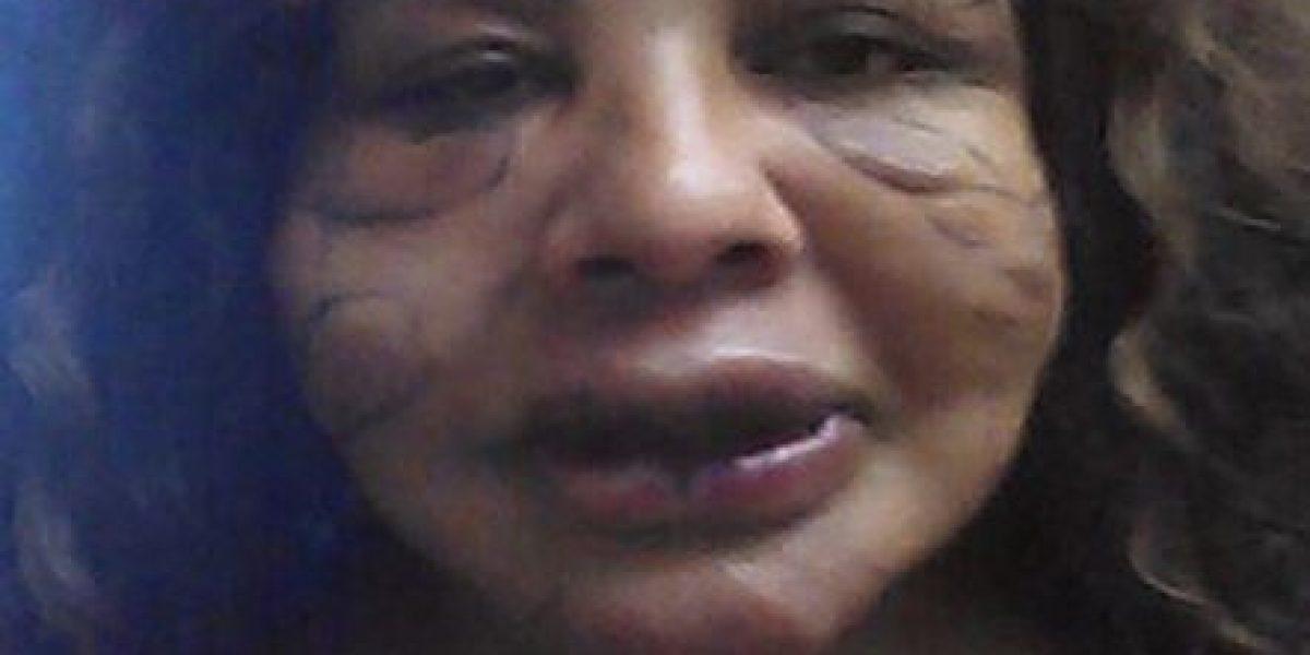 Así está el transgénero al que le inyectaron cemento en la cara