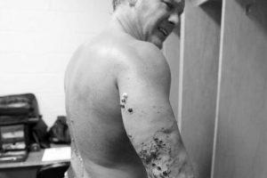 Su brazo derecho fue el más lastimado. Foto:WWE. Imagen Por: