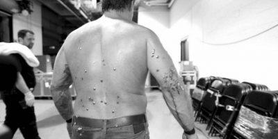 WWE: Así le sacaron las tachuelas del cuerpo a Chris Jericho