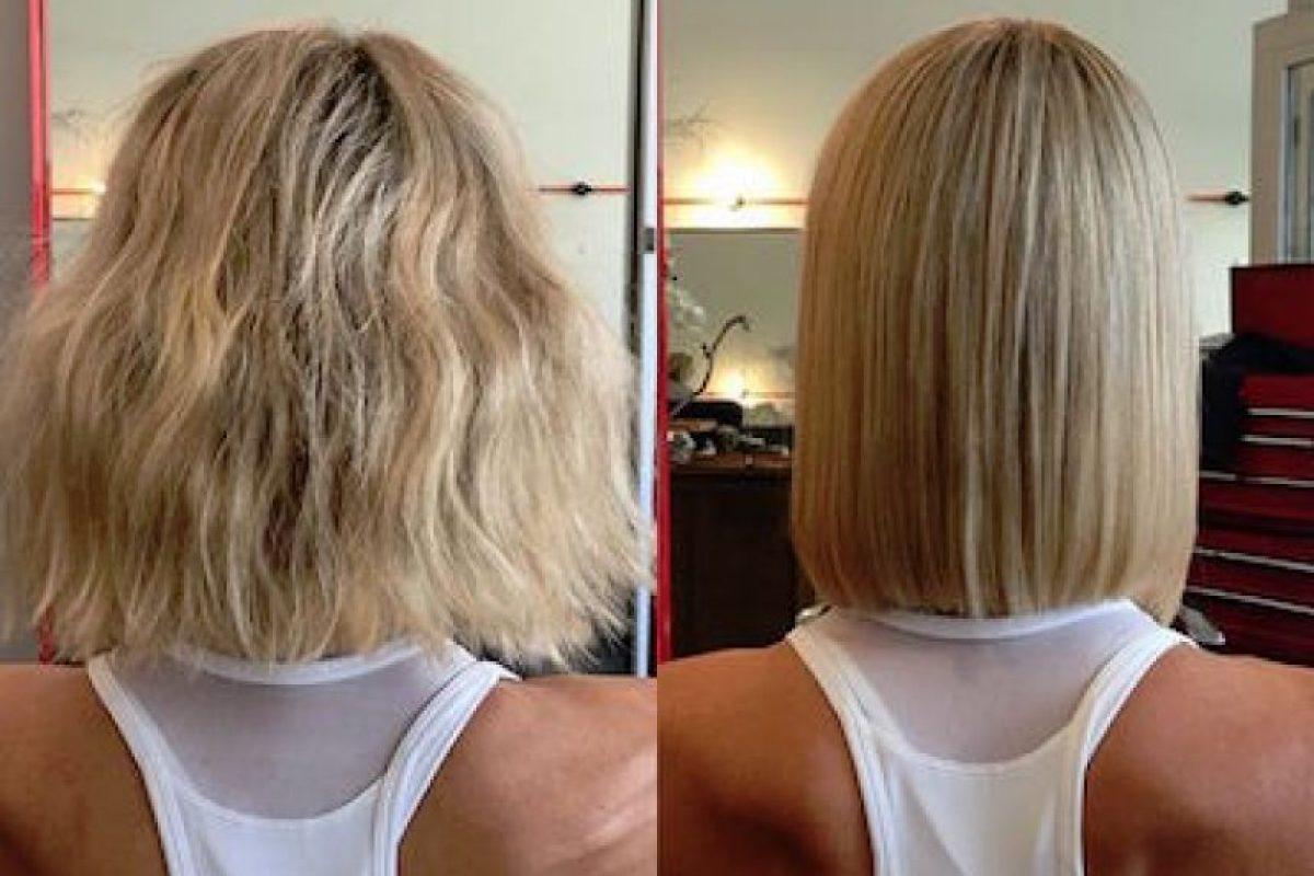Cirugías para quitarse el exceso de piel Foto:Instagram.com/simone_anderson. Imagen Por: