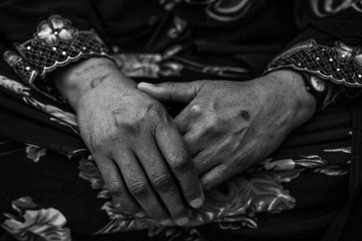"""Mariam, de 45 años, está a la espera de ver a un médico en la clínica de MSF en Debaga. """"Me duele el cuello desde que el combate comenzó en mi pueblo"""", cuenta. """"Fue aterrador: las bombas caían por todas partes y todos tuvimos que huir. Caminamos todo el día para ponernos a salvo. Tengo polvo en el ojo desde entonces. Por favor, no me hagáis fotos: todavía tengo una hermana en Mosul que podría meterse en problemas. Desde que llegué aquí hace tres semanas las cosas han mejorado: me han dado una casa en el campo y algunas donaciones, no me puedo quejar"""". Foto:Manu Brabo/MEMO. Imagen Por:"""