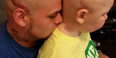 Papá se tatúa la misma cicatriz de cáncer por amor a su hijo